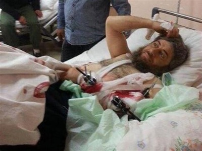 On the 16th April 2014, the Turkish press published a photographe of Abu Muhammad, one of Daesh's superior officers, who had been wounded by the Syrian Arab Army in Idleb, then transferred to Turkey by the MIT (Turkish Intelligence Agency) and cared for at the expense of Turkish tax-payers at the public hospital in Hatay.