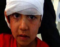 Saudi Airstrike on Residential Neighborhood in Sadaa Kills 9 Civilians, Injures 5