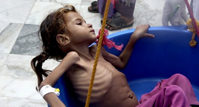 Saudi War on Yemen: World's Worst Famine in a Century Could Claim 13 Million