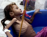 Brutally Honest: Facebook Removes Images Of Starving Children from Yemen