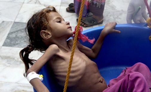 Brutally Honest: Facebook Removes Images Of Starving Children from Yemen