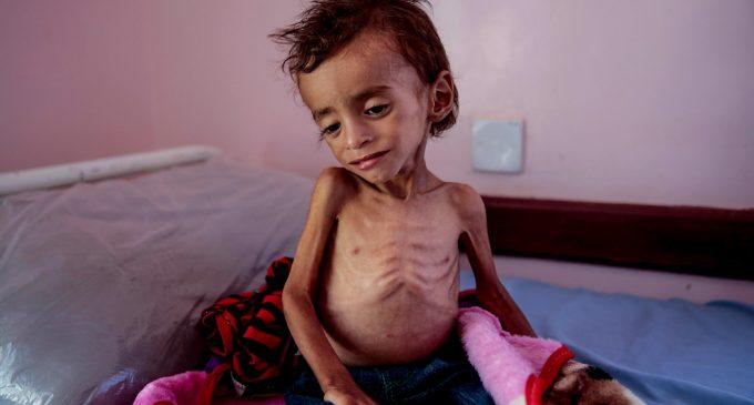 Save the Children: 85,000 Children May Have Already Died of Hunger in Yemen