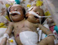 A Tragedy Mirroring a National Catastrophe: Conjoined Twins Die in Yemen Under Saudi Blockade