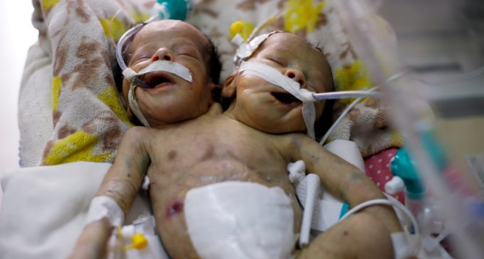 A Tragedy Mirroring a National Catastrophe: Conjoined Twins Die in Yemen Under Saudi Blockade